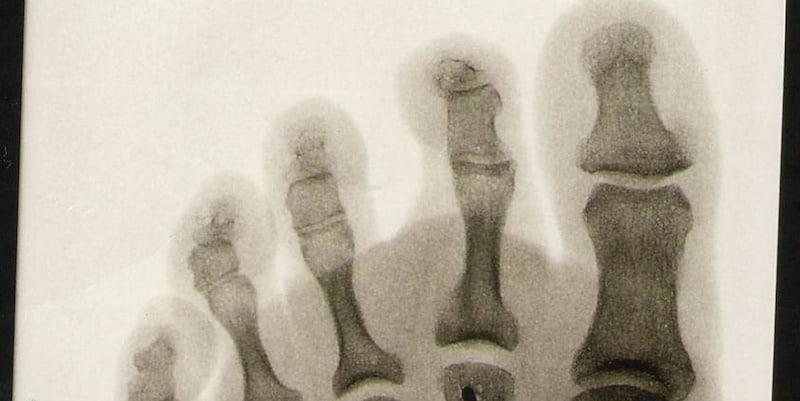 Behandla hallux valgus utan operation